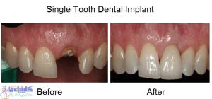 ایمپلنت دندان افتاده از دست رفته
