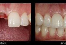 تصویر انواع ایمپلنت دندان، چرا انواع مختلفی وجود دارد و تفاوت آنها با هم چیست؟