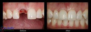 ایمپلنت دندان جایگزین