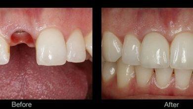 Photo of انواع ایمپلنت دندان، چرا انواع مختلفی وجود دارد و تفاوت هر یک از آنها با دیگری چیست؟