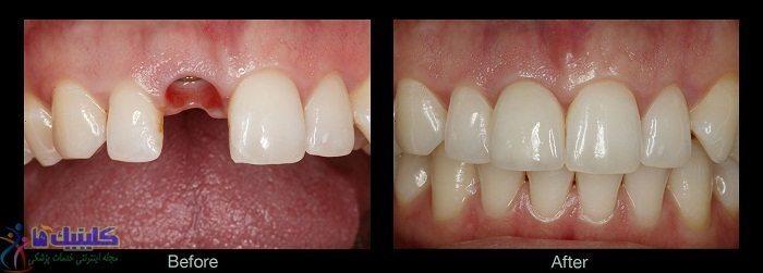 دندان ایمپلنتی با روش فلپ بدون جراحی باز