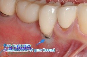 بافت عفونی اطراف ایمپلنت دندانی پری-ایمپلنتایتیس