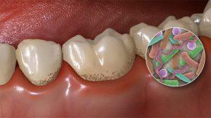 باکتری های دندان و دهان