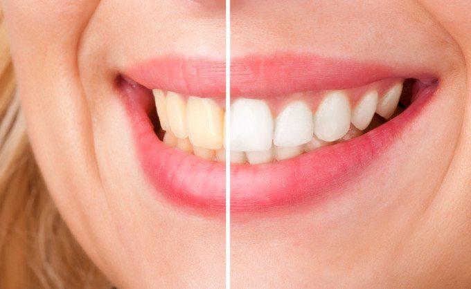 بلیچینگ دندان و سفید کردن دندان با لیزر
