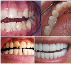 به هم ریختگی دندان ها