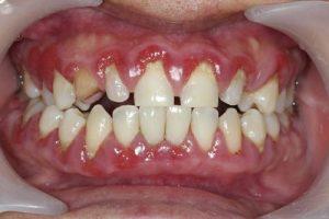 بیماری های لثه و دندان و دهان