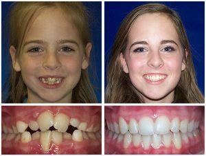 تاثیر ارتودنسی روی تنظیم دندان ها