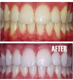 سفید کردن دندان، لبخند لثهای و اصلاح خطوط خنده و روکش دندان با دندانپزشکی زیبایی