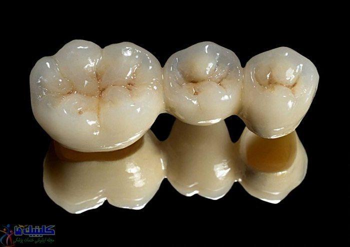تاج و بریج دندانی