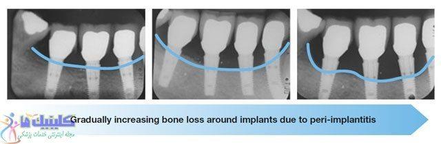 تحلیل رفتن استخوان به علت پری-ایمپلنتایتیس