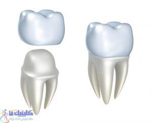 تراشیدن دندان برای قرار دادن تاج
