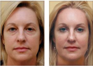 تزریق چربی در زیر پوست صورت
