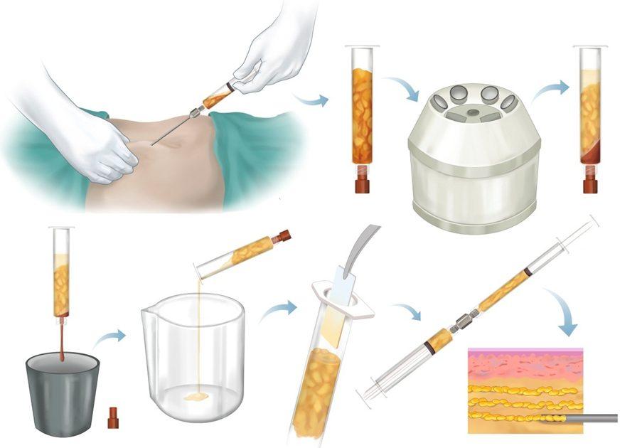 تزریق چربی در زیر پوست مراحل