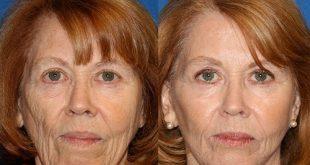 تزریق چربی به صورت برای بهبود دادن پوست صورت و جوان سازی و فرم دهی
