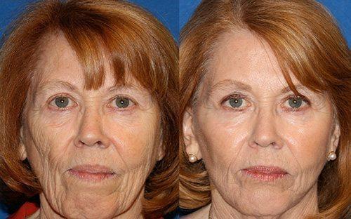 تمام معایب و مزایا برای تزریق چربی صورت یا تزریق چربی به صورت