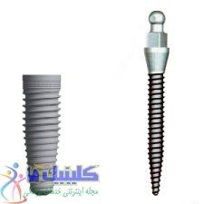 تفاوت مینی ایمپلنت دندان و انواع ایمپلنت دندان معمولی