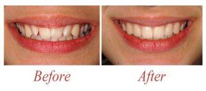 تنظیم دندان ها ارتودنسی
