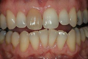 تیرگی دندان ها و سفید کردن آن ها