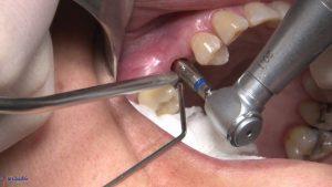 جراحی برای قرار دادن مینی ایمپلنت دندان