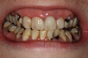 خراب شدن و پوسیدگی دندان ها