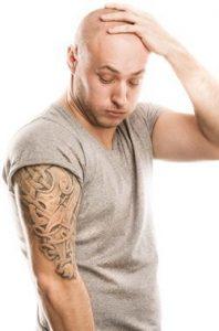 خودداری از لیزر موهای زائد کسانی که تتو دارند