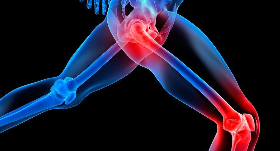 درد مفاصل آرتریت