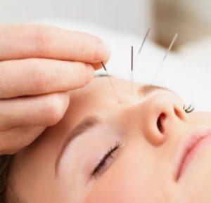عوامل سردرد و درمان آن ها با طب سوزنی