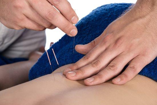 درمان کمر درد شدید با طب سوزنی