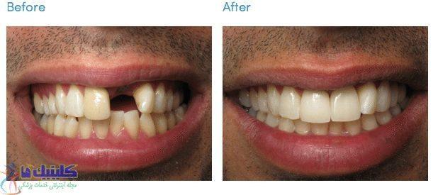 بریج دندان مصنوعی با ایمپلنت انجام می شود بدون داشتن عوارض بریج دندان معمولی