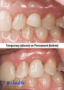 دندان موقت و دندان دائم در ایمپلنت دندان فوری