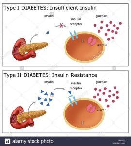 درمان دیابت نوع اول و دوم