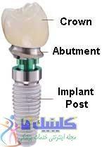 انواع ایمپلنت دندان برای جایگزین بی دندانی