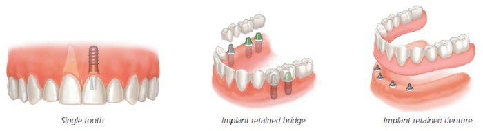 روش های مختلف ایمپلن دندان مصنوعی بریج