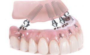 روش all on four برای محکم کردن دندان مصنوعی است