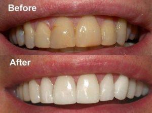 روشن تر شدن و رفع زردی دندانها