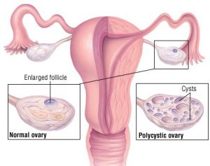 سندرم تخمدان پر کیست