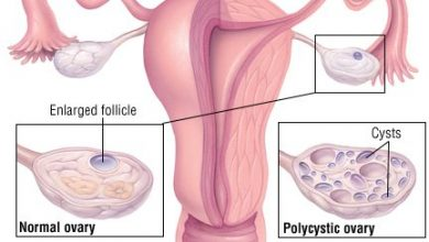 Photo of چطور مشکلات قاعدگی زنان و تخمدان پلی کیستیک یا تنبلی تخمدان با طب سوزنی درمان می شود؟