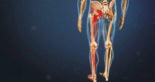 درمان سنتی سیاتیک و کمر درد به کمک طب سنتی چینی و طب سوزنی