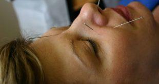 درمان افسردگی شدید با استفاده از طب سوزنی و کاهش اضطراب