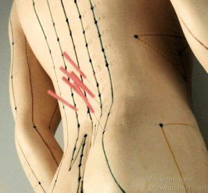 نقاط طب سوزنی برای رفع کمردرد و سیاتیک