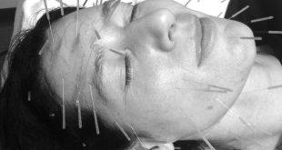 جوانسازی و افزایش سلامت پوست صورت به کمک طب سوزنی زیبایی