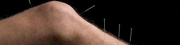 درمان آسیب درزشی طب سوزنی زانو