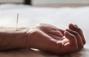 طب سوزنی درمان کم خوابی