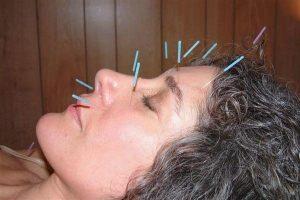 طب سوزنی برای سردرد