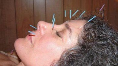 Photo of علت سردرد و روش مقابله با انواع آن به کمک طب سوزنی چین
