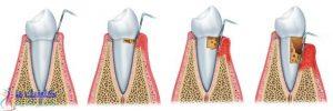 خطرات ایمپلنت دندانی