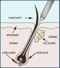 عملکرد الکترولیز حذف مو