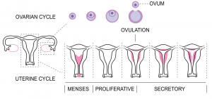 سندرم تخمدان پلی کیستیک و دوران قاعدگی