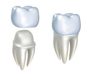 قرار دادن پوشش و روکش روی دندان تاج دندان