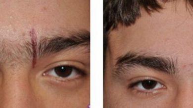 Photo of لیزر ابرو ، حذف موهای زائد اطراف ابرو ها با استفاده از لیزر به چه صورت انجام می گیرد؟